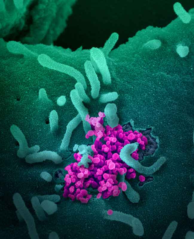 New Images Released Prickly Shape Like A Crown –  Coronavirus Under The Microscope