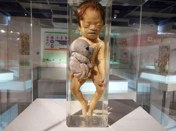 Siriraj Medical Museum 32 weirdest museums in the world that are actually disturbing vdiscovery arvinovoyage