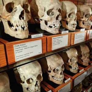 The Mutter Museum at The College of Physicians 32 weirdest museums in the world that are actually disturbing vdiscovery arvinovoyage